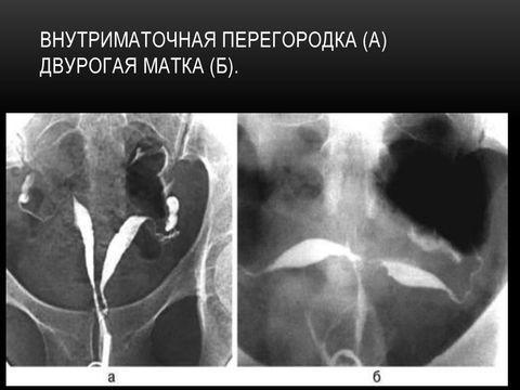 Двурогая матка: симптомы патологии, диагностика, вероятность беременности и роды