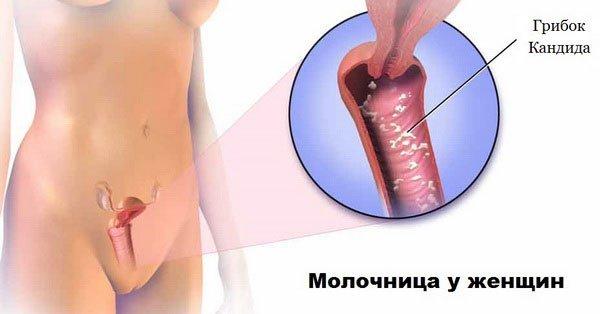 Вагинальный кандидоз: причины, симптомы, как лечить острую и хроническую форму