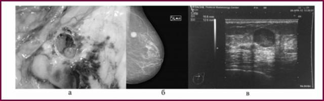 Инвазивный рак молочной железы: виды, симптомы, стадии, диагностика, лечение