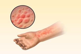 Бывает ли аллергия на сперму, как она проявляется и что делать в таком случае?