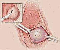 Абсцесс молочной железы: какими симптомами проявляется, хирургическое и местное лечение