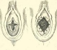 Атрезия девственной плевы, как причина болей и аменореи в подростковом возрасте