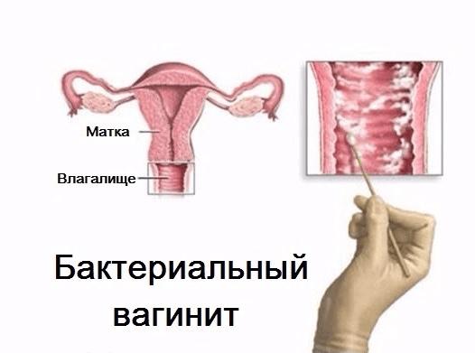 Бактериальный вагинит: причины возникновения, симптомы, схема лечения
