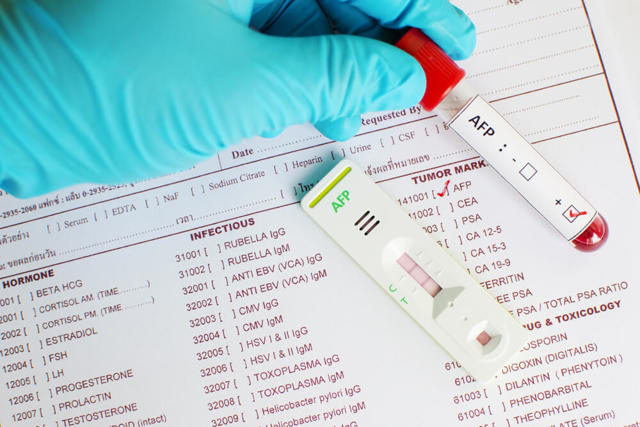 Что такое АФП, почему его норма так важна при беременности и как проводят анализ?