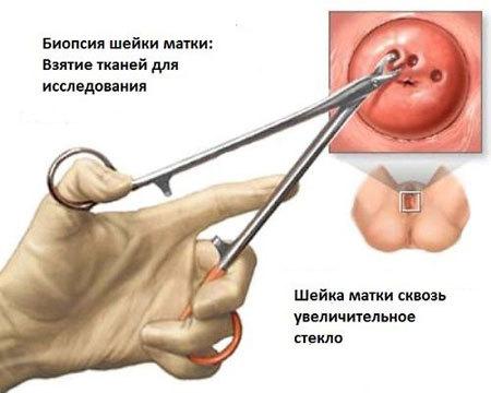 Что такое биопсия шейки матки, как она проводится, подготовка и реабилитация