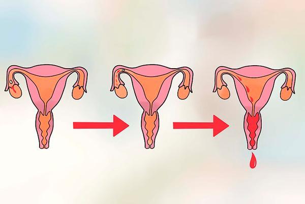 Короткий менструальный цикл: причины нарушений, методы коррекции состояния