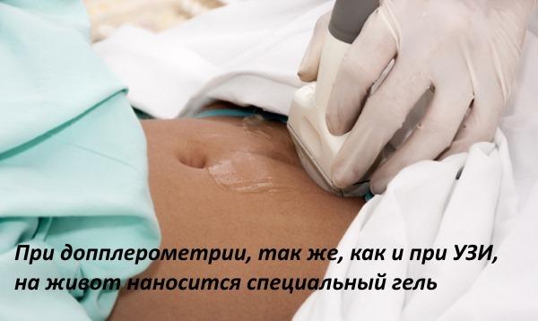 Допплер УЗИ при беременности (допплерометрия): показания, проведение, расшифровка