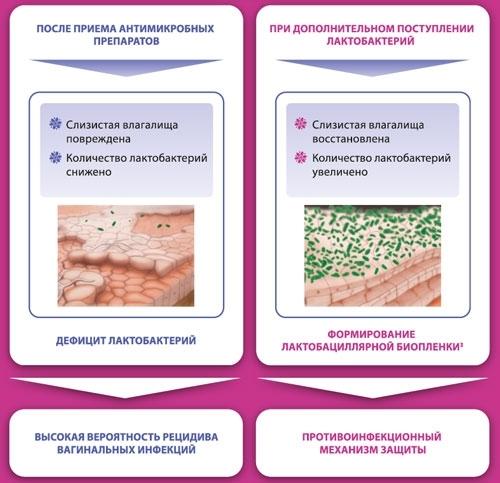 Бактериальный вагиноз: причины, симптомы, лечение