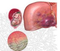 hellp-синдром: проявления, методы лечения, риски для матери и плода