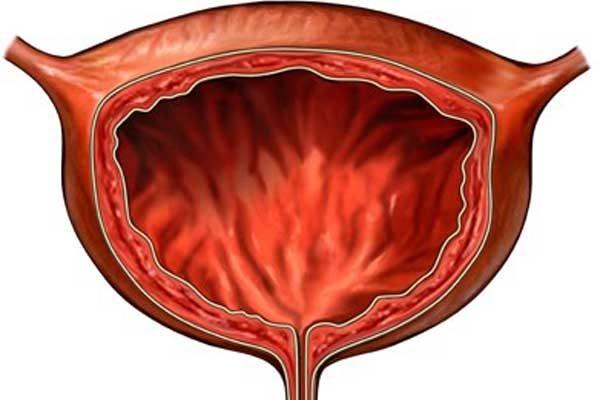 Геморрагический цистит у женщин: проявления, стадийность заболевания, методы лечения