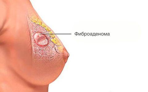 Доброкачественные опухоли молочных желез: классификация, диагностика, методы лечения