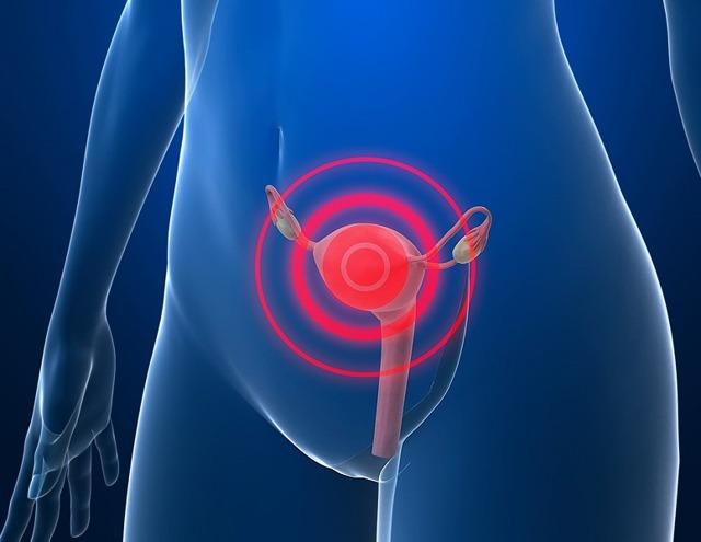 Рождающийся миоматозный узел как осложнение субмукозной миомы – симптомы и лечение