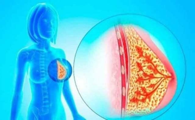 Внутрипротоковая папиллома молочной железы: виды, диагностика, лечение