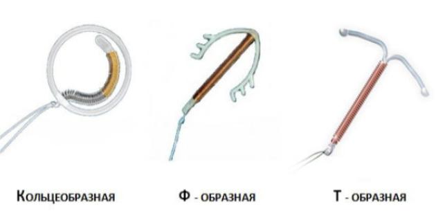 Внутриматочная спираль: виды, принцип действия, установка и удаление