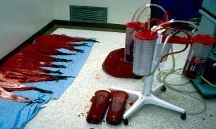 Геморрагический шок в акушерстве: стадии, допустимая кровопотеря, действия врачей