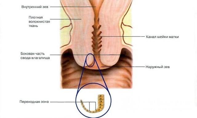 Ретенционные кисты шейки матки: следствием каких состояний являются, лечение, прогнозы