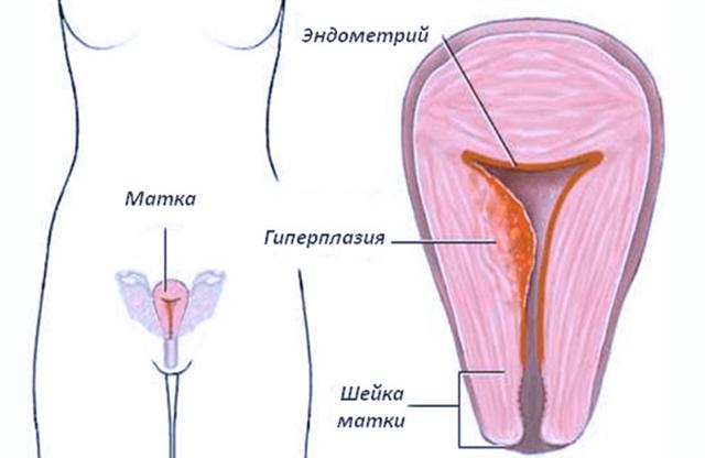 Железистая гиперплазия эндометрия (простая, сложная, атипическая, очаговая) – симптомы, лечение