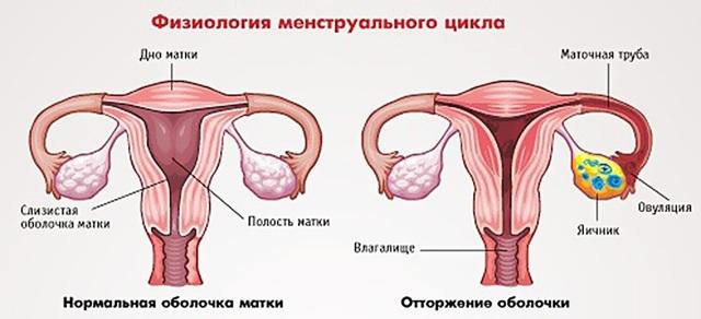 Гипоменструальный синдром: как проявляется, диагностика, лечение