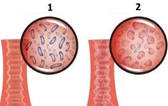 Дисбактериод влагалища: симптомы, провоцирующие факторы, как лечить данное состояние