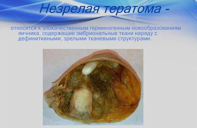 Дермоидная киста яичника: причины возникновения, операция по удалению