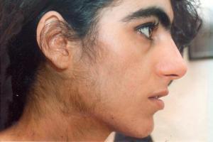 17-ОН-прогестерон – нарушения уровня, за что отвечает, коррекция гормонального фона