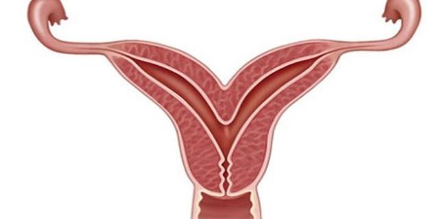 Зондирования полости матки: как проводится, когда показана, возможные осложнения