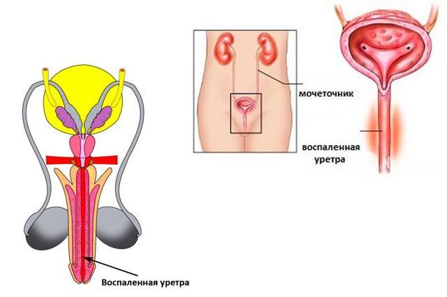 Гонорейный уретрит – об особенностях течения, диагностики и лечения заболевания у женщин