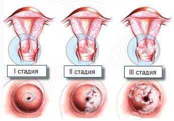 Крауроз вульвы: клинические проявления, диагностика, методы лечения заболевания