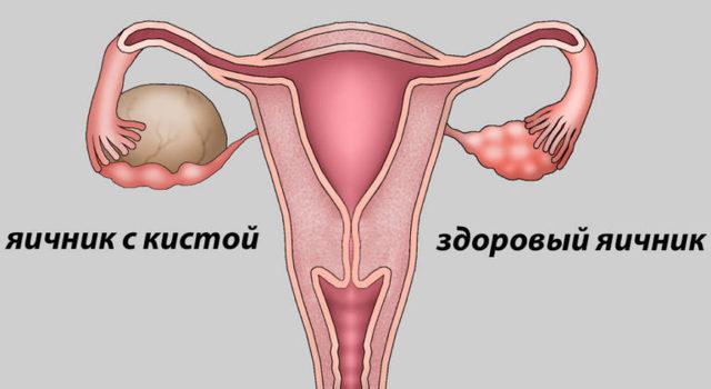 Анэхогенное включение в матке или яичниках – какой диагноз кроется под такой терминологией?