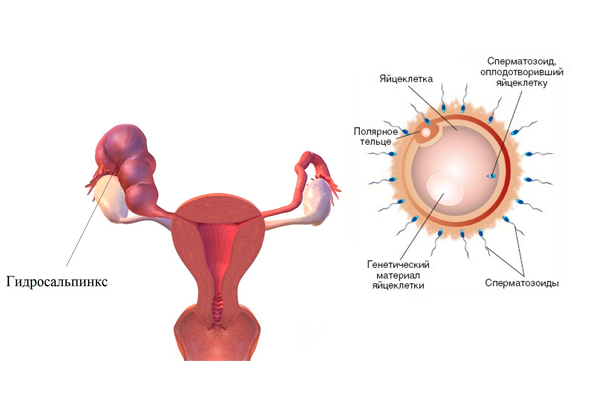 Гидросальпинкс: причины патологии, лечение и вероятность беременности