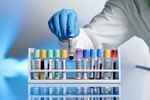 Какие анализы сдавать при климаксе: на гормоны, липиды, другие исследования