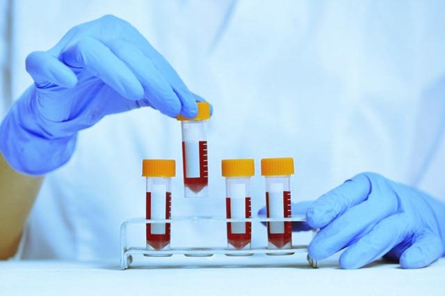 Анализы на сифилис: все о методах лабораторной диагностики заболевания