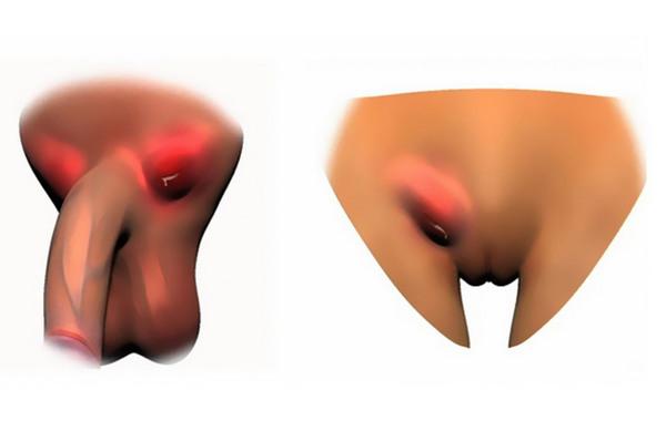 Венерическая лимфогранулема: пути заражения, проявления, лечение, прогноз