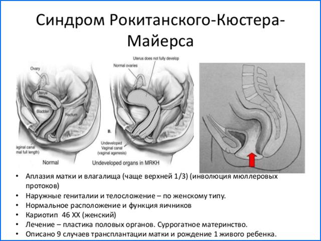 Аплазия матки, шейки, влагалища: виды патологии, ее проявления, возможность хирургической коррекции