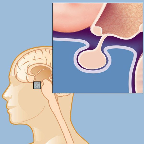 Гиперпролактинемия у женщин и мужчин: симптомы, диагностика, лечение