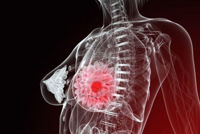 Олеогранулема молочной железы: почему возникает и в каких случаях нужно ее удалять?