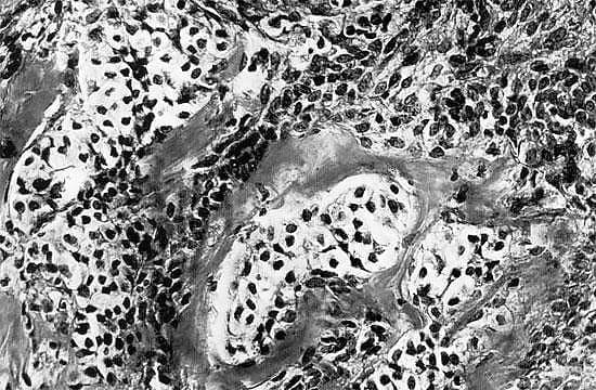 Андробластома яичника: виды опухоли, симптомы, методы лечения, прогноз