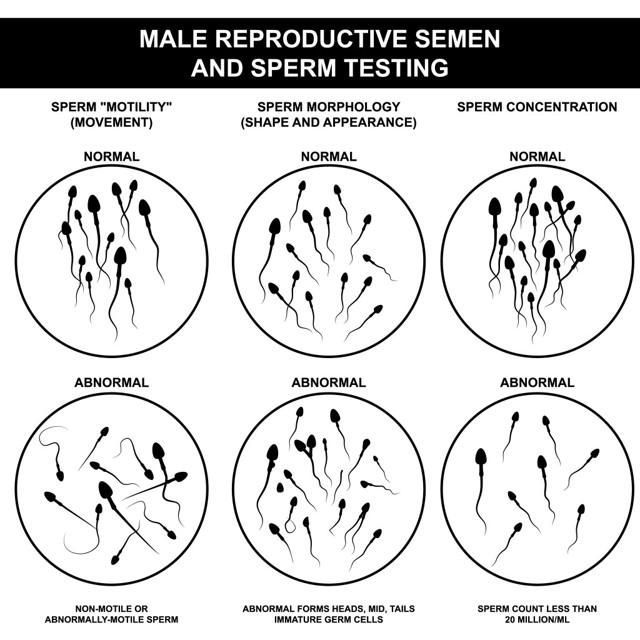 Астенозооспермия: причины возникновения патологии, лечение, вероятность беременности