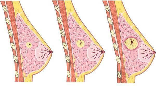 Диффузная мастопатия: что это такое, причины, симптомы и лечение заболевания