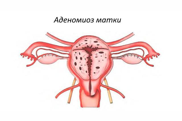 Аденомиоз: формы и степени заболевания, симптомы и методы лечения