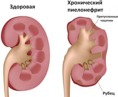 Инфекции мочевыводящих путей у беременных: почему развиваются? Как лечить?