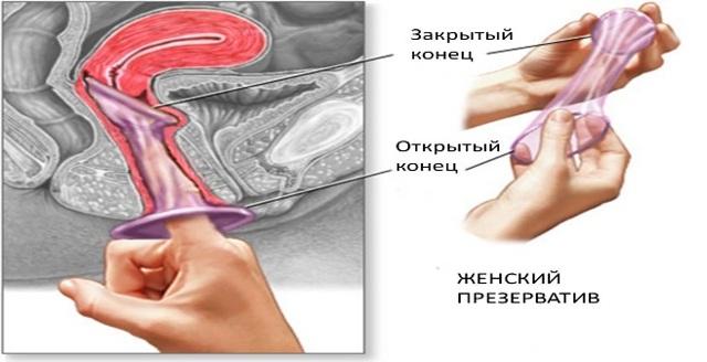 Барьерная контрацепция: правила использования механических и химических способов