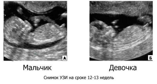 Первое УЗИ при беременности на сроках 12-14 недель
