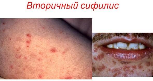 Вторичный сифилис: симптомы, диагностика, лечение