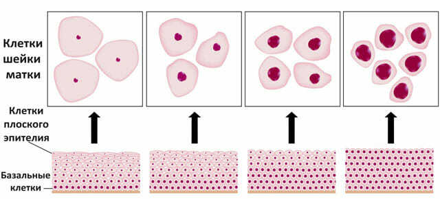 Дисплазия шейки матки 1, 2, 3 степени: диагностика, лечение, причины возникновения