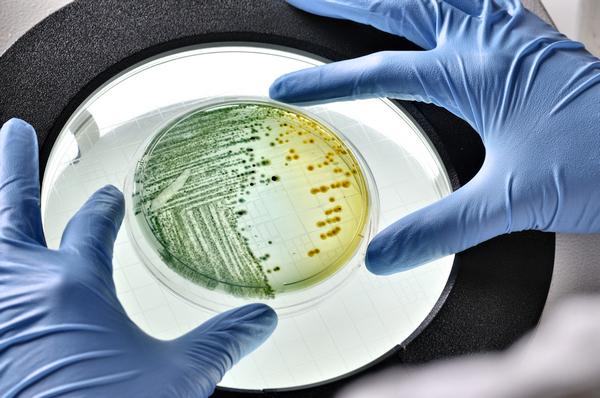 Генитальный туберкулез у женщин: клиническая картина, принципы лечения