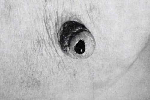 Дуктография – исследование протоков молочной железы: проведение и достоверность