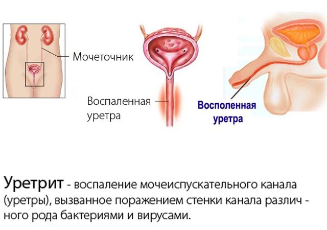 Антибиотики при уретрите у женщин: правила выбора, схемы приема, противопоказания