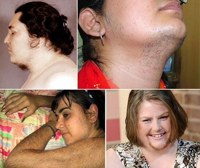 Вирильный синдром: причины патологии и ее формы, проявления, методы лечения
