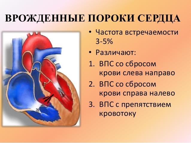 Беременность при пороках сердца: обзор основных заболеваний и прогнозы